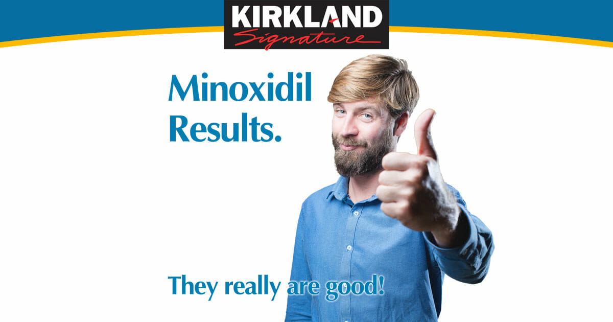 Minoxidil Results - They are Very Good - MinoxidilUK