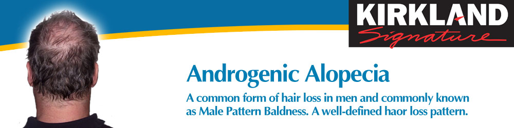 Androgenic Alopecia is a common form of hair loss in men, known as Male Pattern Baldness