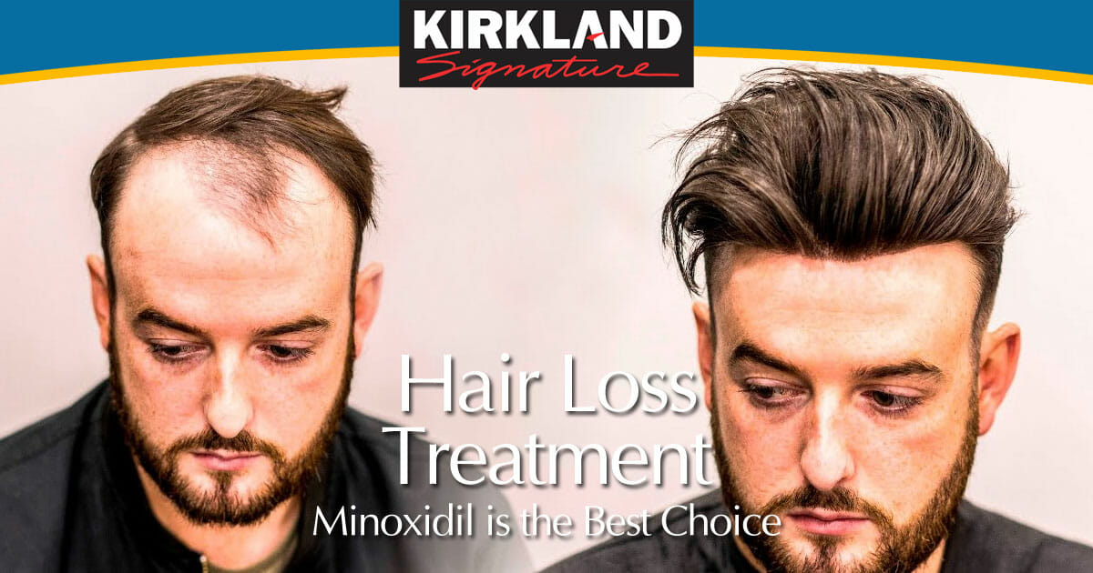 Hair Loss Treatment - Minoxidil is your Best Choice